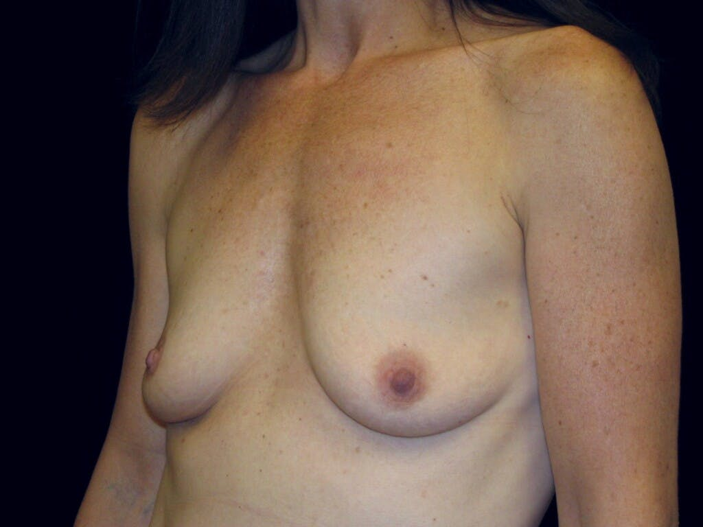 Breast Augmentation Gallery - Patient 39246051 - Image 5