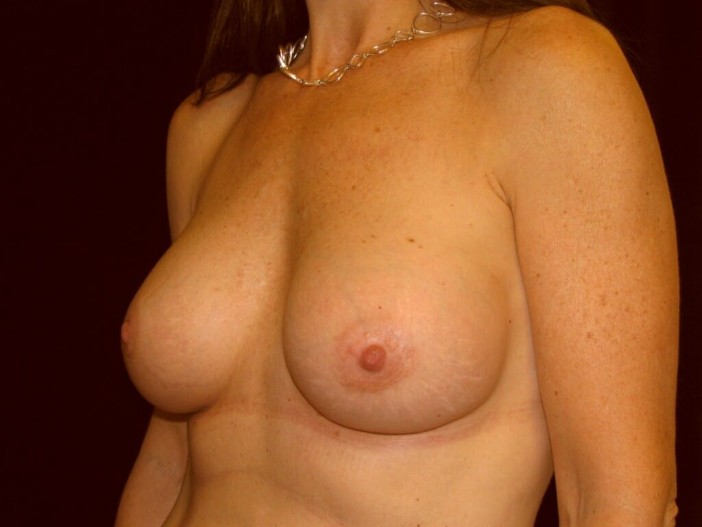 Breast Augmentation Gallery - Patient 39246051 - Image 6
