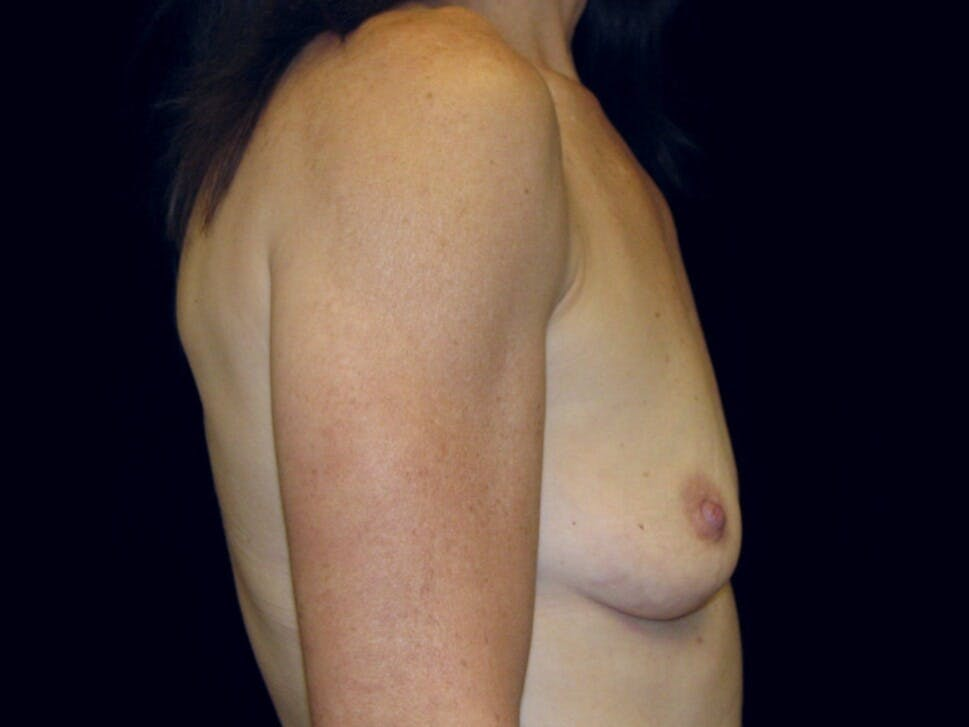 Breast Augmentation Gallery - Patient 39246051 - Image 7
