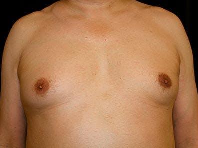 Gynecomastia Gallery - Patient 39246055 - Image 1