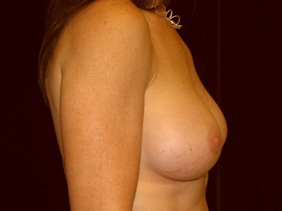 Breast Augmentation Gallery - Patient 39246051 - Image 8