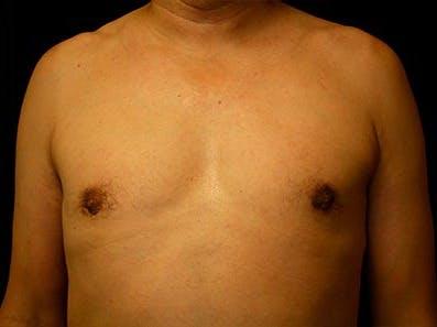 Gynecomastia Gallery - Patient 39246055 - Image 2