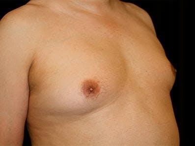 Gynecomastia Gallery - Patient 39246055 - Image 3