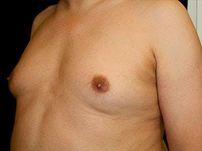 Gynecomastia Gallery - Patient 39246055 - Image 5