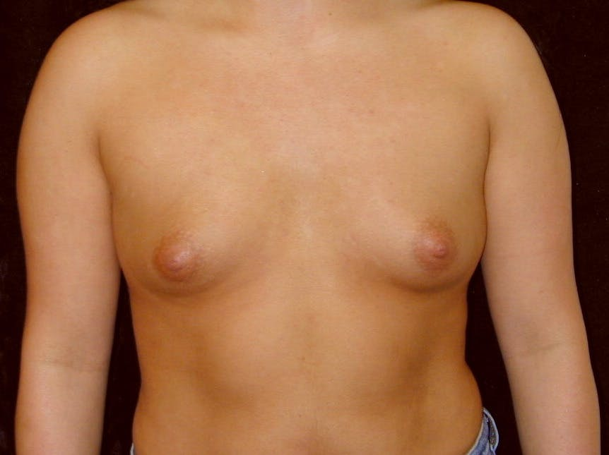 Breast Augmentation Gallery - Patient 39246059 - Image 1