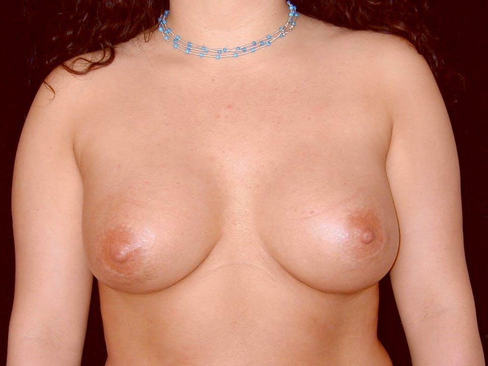 Breast Augmentation Gallery - Patient 39246059 - Image 2
