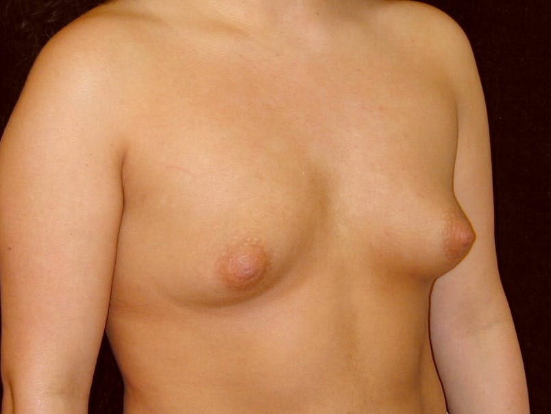 Breast Augmentation Gallery - Patient 39246059 - Image 3