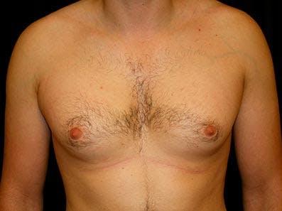 Gynecomastia Gallery - Patient 39246057 - Image 1