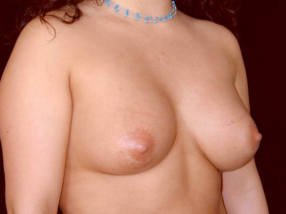 Breast Augmentation Gallery - Patient 39246059 - Image 4