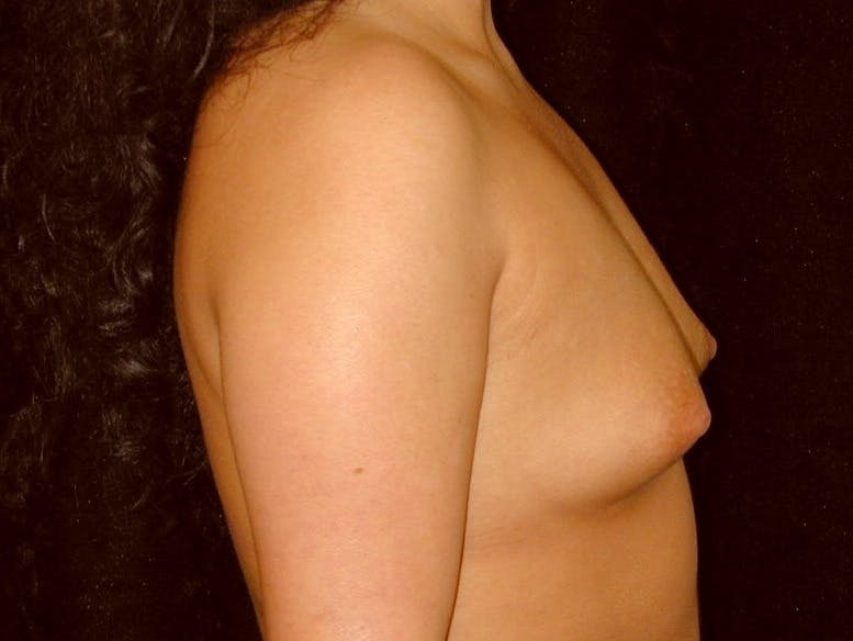 Breast Augmentation Gallery - Patient 39246059 - Image 5