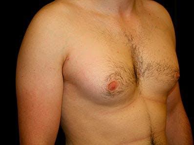 Gynecomastia Gallery - Patient 39246057 - Image 3