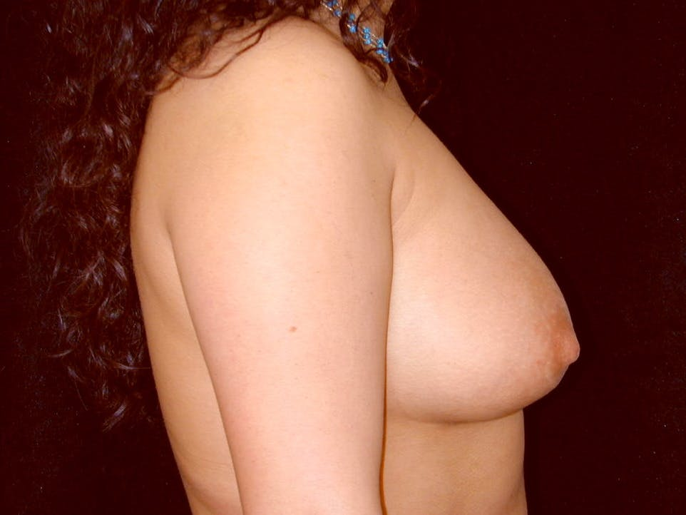 Breast Augmentation Gallery - Patient 39246059 - Image 6