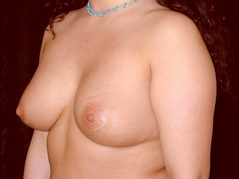 Breast Augmentation Gallery - Patient 39246059 - Image 8