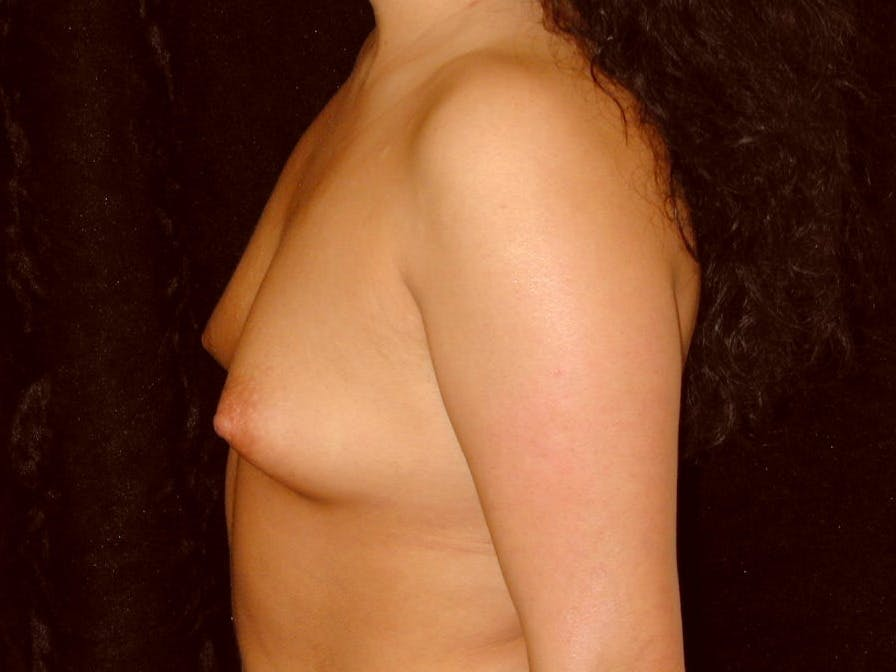 Breast Augmentation Gallery - Patient 39246059 - Image 9