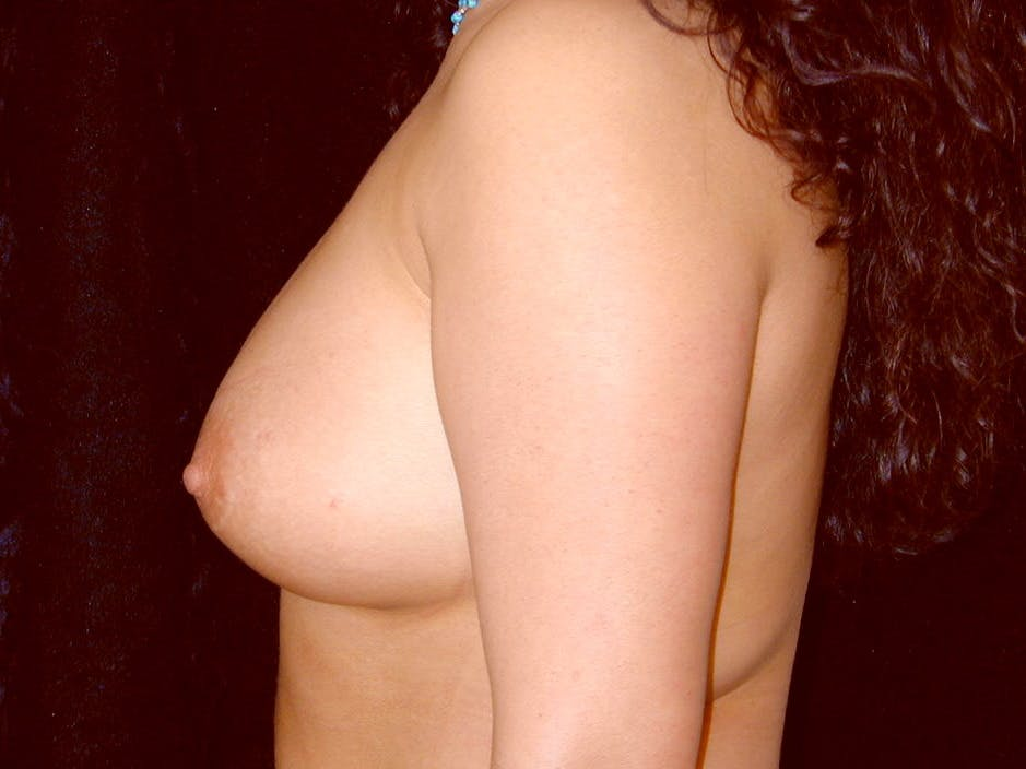 Breast Augmentation Gallery - Patient 39246059 - Image 10