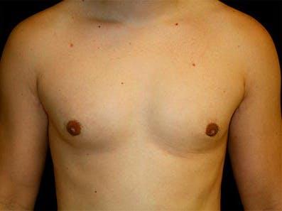 Gynecomastia Gallery - Patient 39246062 - Image 2