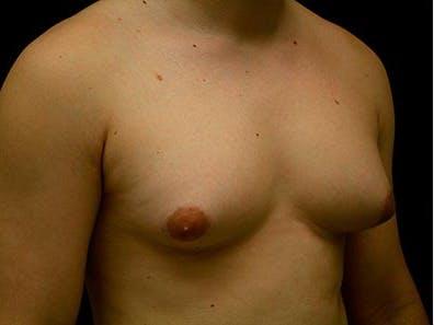 Gynecomastia Gallery - Patient 39246062 - Image 3