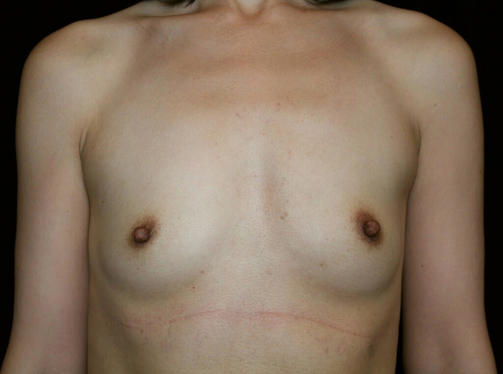 Breast Augmentation Gallery - Patient 39246068 - Image 1