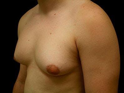 Gynecomastia Gallery - Patient 39246062 - Image 5