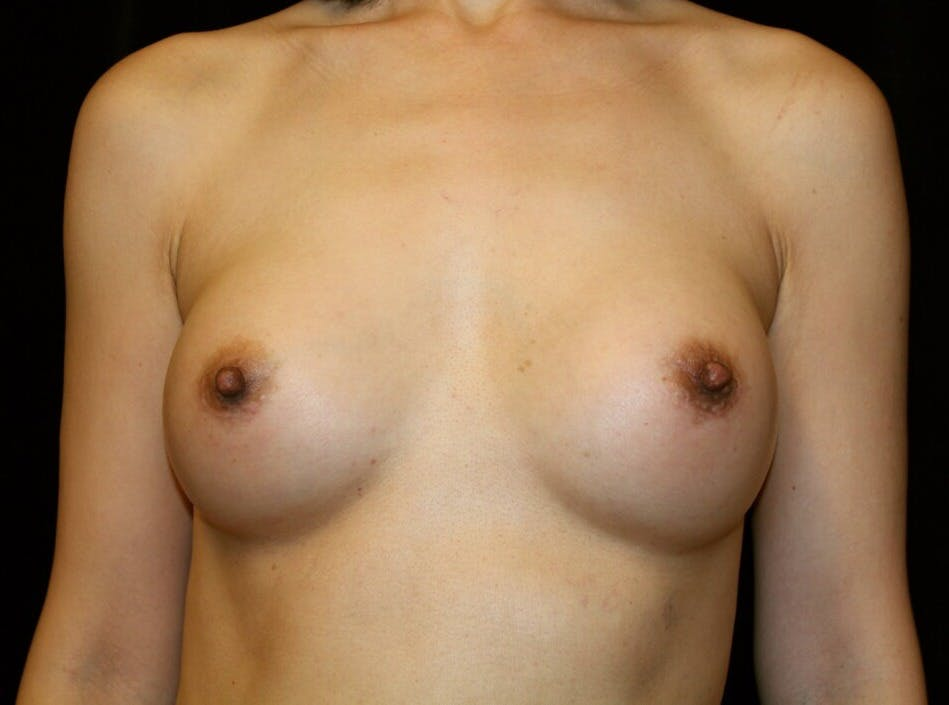 Breast Augmentation Gallery - Patient 39246068 - Image 2