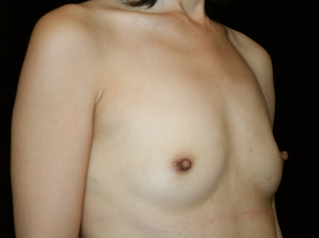 Breast Augmentation Gallery - Patient 39246068 - Image 3