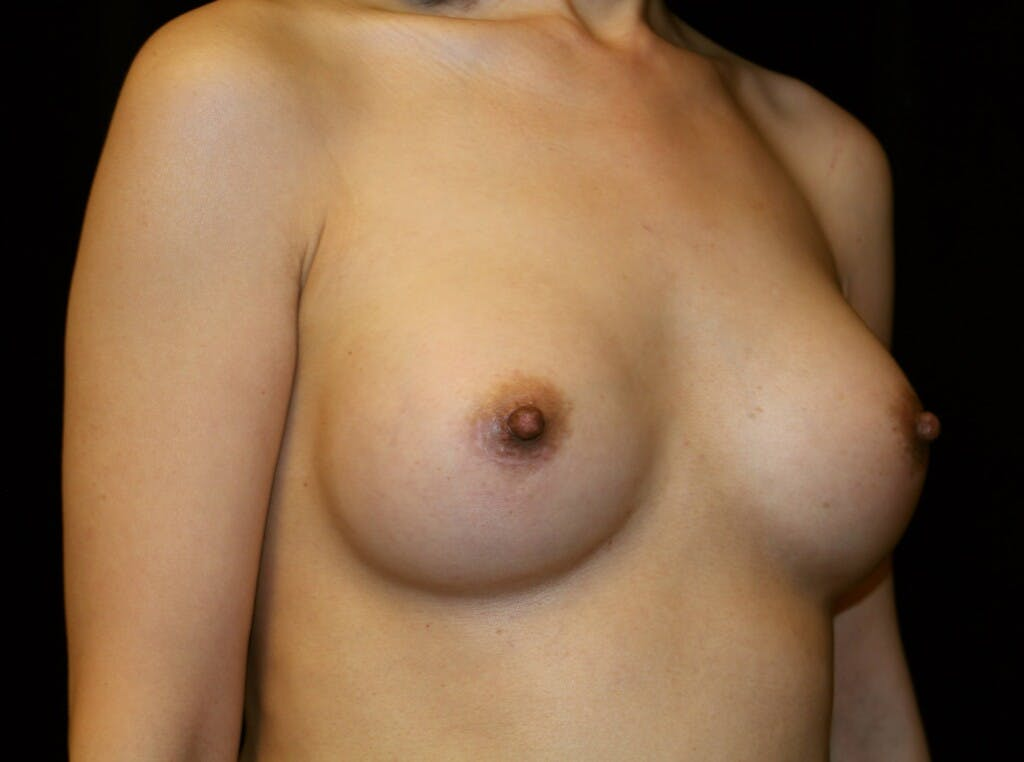 Breast Augmentation Gallery - Patient 39246068 - Image 4