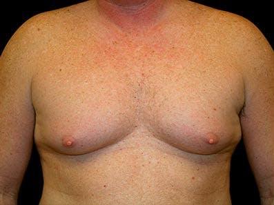 Gynecomastia Gallery - Patient 39246067 - Image 1