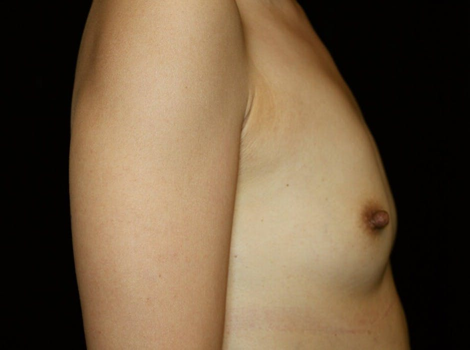 Breast Augmentation Gallery - Patient 39246068 - Image 5