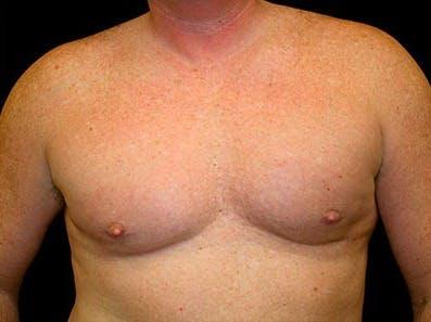 Gynecomastia Gallery - Patient 39246067 - Image 2