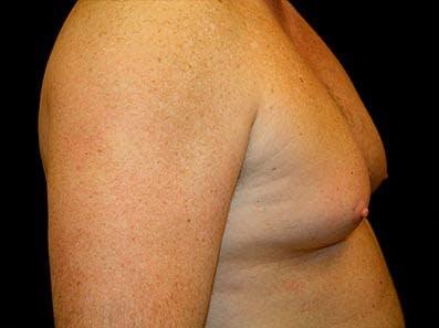 Gynecomastia Gallery - Patient 39246067 - Image 3