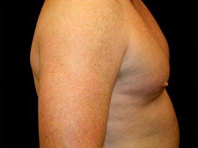 Gynecomastia Gallery - Patient 39246067 - Image 4