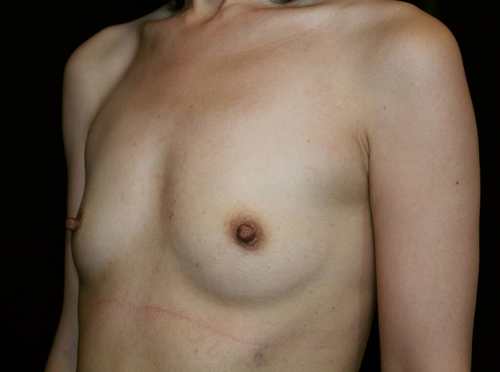 Breast Augmentation Gallery - Patient 39246068 - Image 7
