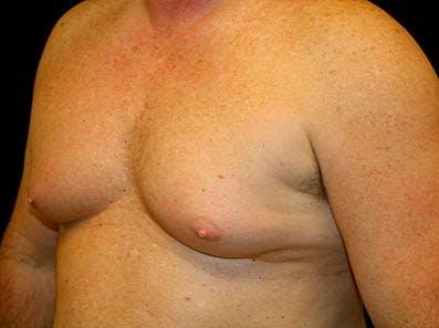 Gynecomastia Gallery - Patient 39246067 - Image 5