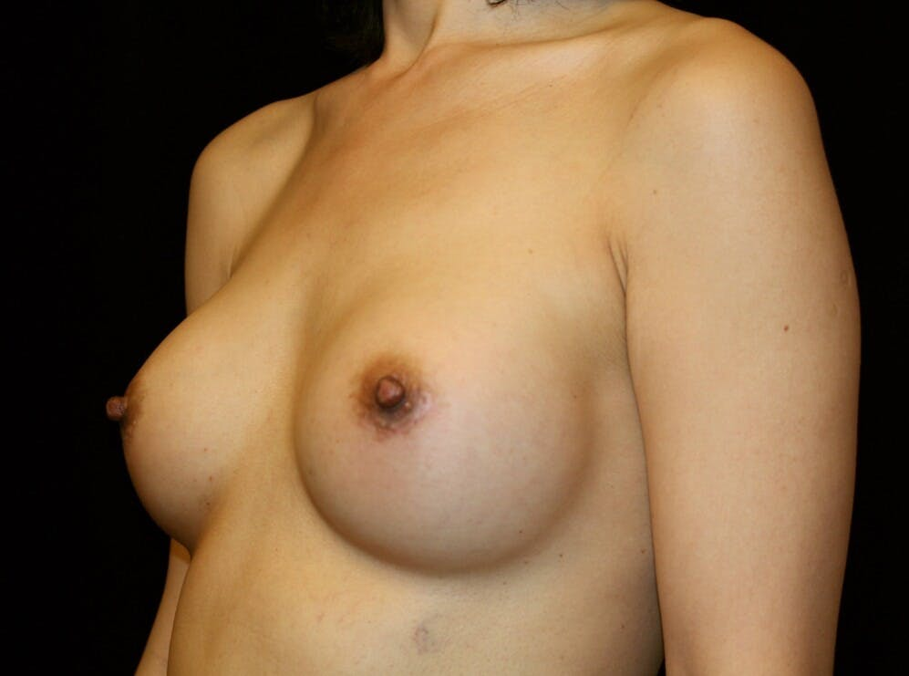 Breast Augmentation Gallery - Patient 39246068 - Image 8