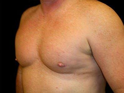 Gynecomastia Gallery - Patient 39246067 - Image 6