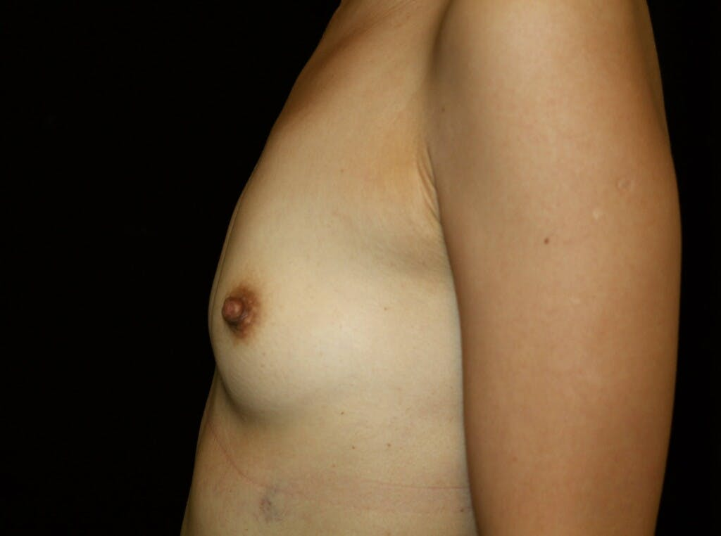 Breast Augmentation Gallery - Patient 39246068 - Image 9
