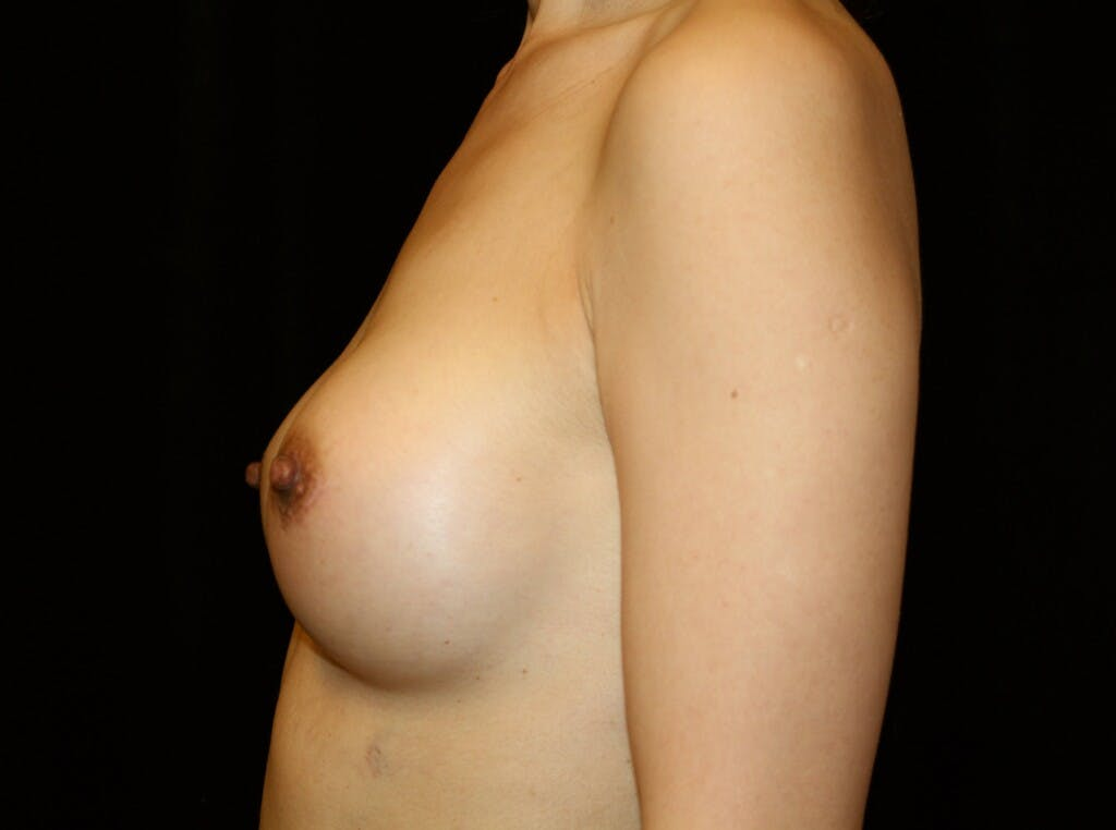 Breast Augmentation Gallery - Patient 39246068 - Image 10