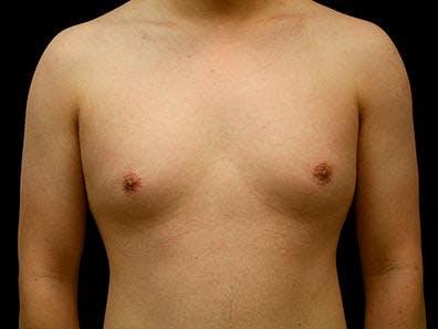 Gynecomastia Gallery - Patient 39246069 - Image 1