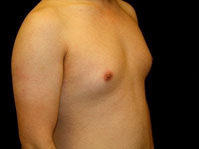 Gynecomastia Gallery - Patient 39246069 - Image 3