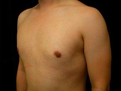 Gynecomastia Gallery - Patient 39246069 - Image 6