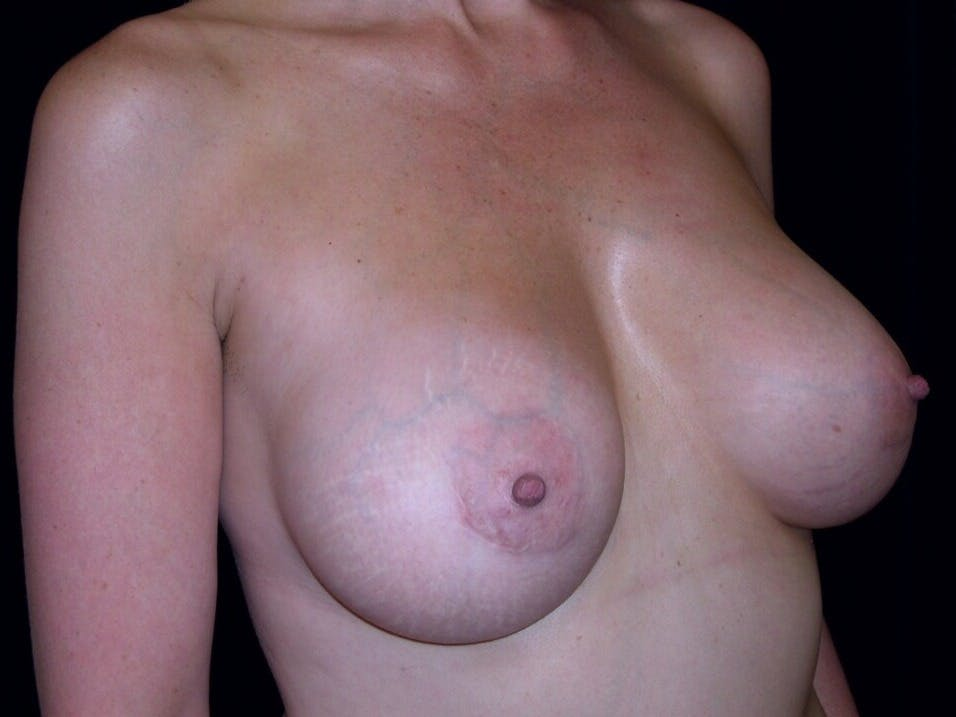 Breast Augmentation Gallery - Patient 39246072 - Image 4