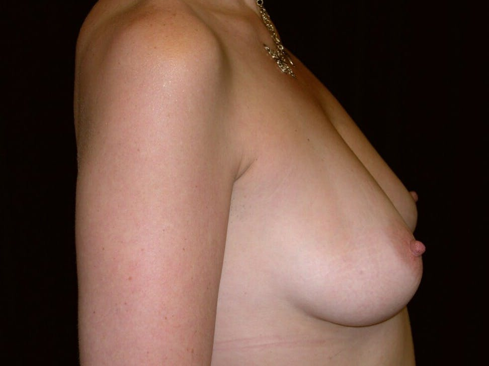 Breast Augmentation Gallery - Patient 39246072 - Image 5