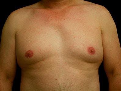 Gynecomastia Gallery - Patient 39246071 - Image 1
