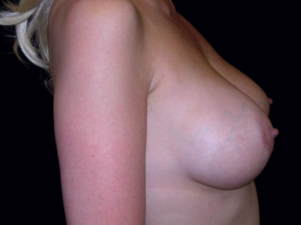 Breast Augmentation Gallery - Patient 39246072 - Image 6