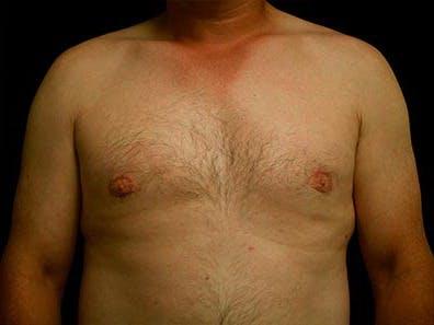 Gynecomastia Gallery - Patient 39246071 - Image 2