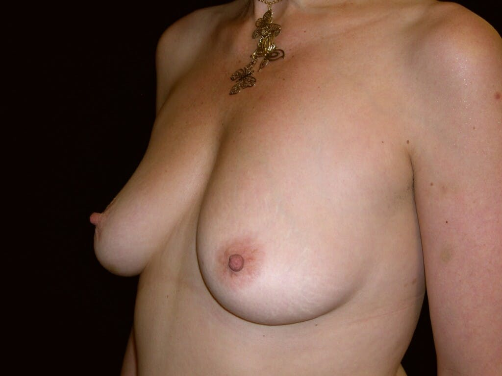Breast Augmentation Gallery - Patient 39246072 - Image 7