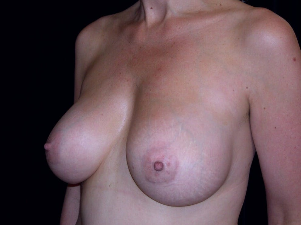 Breast Augmentation Gallery - Patient 39246072 - Image 8