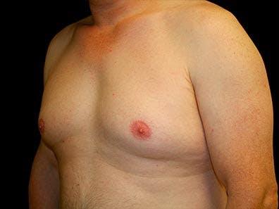 Gynecomastia Gallery - Patient 39246071 - Image 5