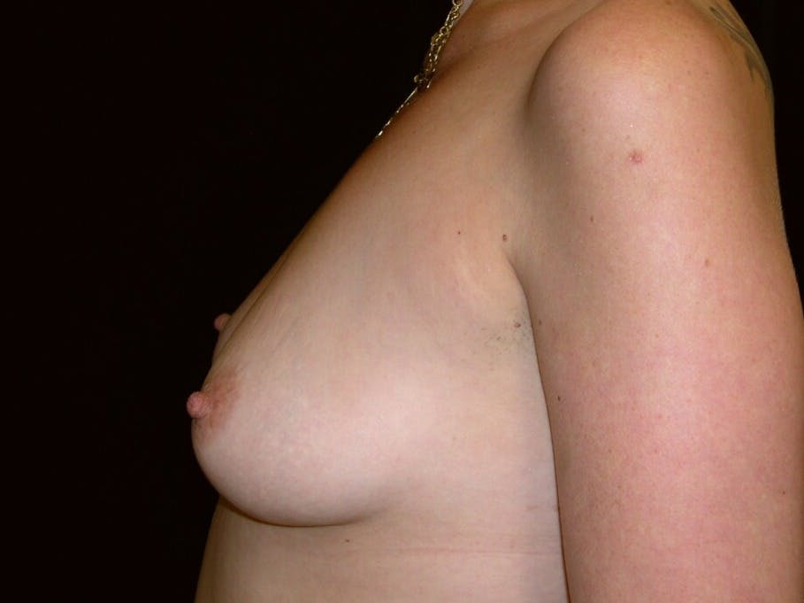 Breast Augmentation Gallery - Patient 39246072 - Image 9