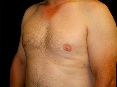 Gynecomastia Gallery - Patient 39246071 - Image 6